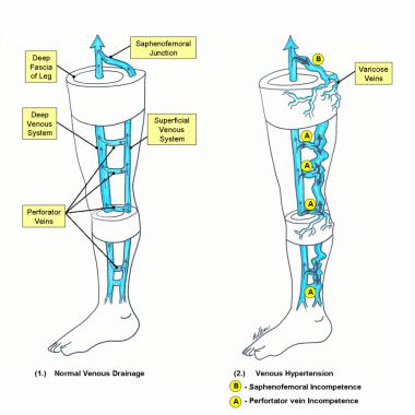 Vascular diseases schematic diagram of the deep and superficial venous systems of the lower extremity 1 normal venous drainage arrows depict the flow of venous blood publicscrutiny Image collections