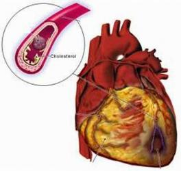 Nhồi máu cơ tim là gì ?