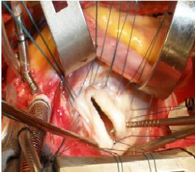 Hở van 2 lá bẩm sinh đơn thuần: Từ chuẩn đoán đến điều trị phẫu thuật (P.1)