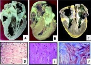 Sự khác nhau về biểu hiện lâm sàng giữa nam và nữ trong bệnh cơ tim phì đại