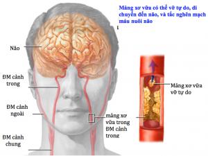 Đặc điểm lâm sàng, cận lâm sàng, yếu tố nguy cơ của thiếu máu cục bộ não cấp