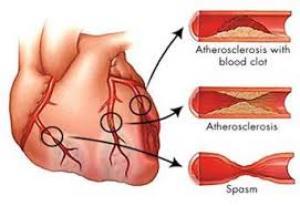 Cải thiện phân suất tống máu thất trái sau tái thông mạch vành và cơ tim còn sống xác định bằng siêu âm tim Dobutamine liều thấp (P.1)