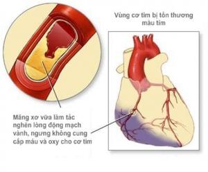 Vai trò của thuốc ức chế kênh đồng vận SGLT2 trên bệnh nhân đái tháo đường típ 2 ở người Đông Á: Những hiểu biết mới trong quản lý bệnh nhân Châu Á