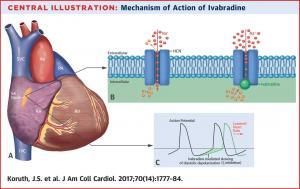 Vai trò của Ivabradine trong kiểm soát đau thắt ngực ổn định ở bệnh nhân với các bệnh cảnh lâm sàng khác nhau (P.2)