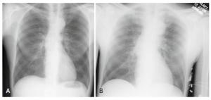 Hội chứng động mạch chủ cấp: Cập nhật chiến lược chẩn đoán và điều trị hiện nay (Acute Aortic Syndromes: Update in Current Medical) - P.3 - Điều trị