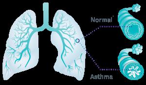 Giá trị của FENO trong việc đánh giá viêm phế quản nơi người bệnh nhân bị hen suyễn (P.3 end)
