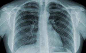 Đặc điểm lâm sàng và kết cục của viêm phổi ở bệnh nhân bệnh phổi tắc nghẽn mạn tính