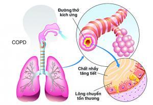 Thách thức trong chẩn đoán hội chứng chồng lấp Hen-COPD (ACOS)