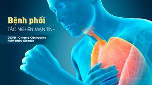 Ngăn ngừa đợt kịch phát cấp COPD Theo CHEST-CTS Guideline