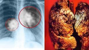 Ung thư phổi liệu bệnh nhân có quyền hy vọng?