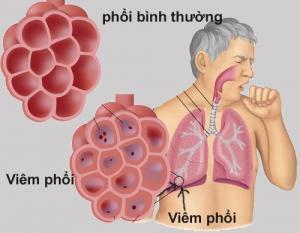 Tác nhân vi sinh gây nhiễm trùng hô hấp dưới cộng đồng cấp tính không nhập viện - Kết quả bước đầu từ nghiên cứu EACRI